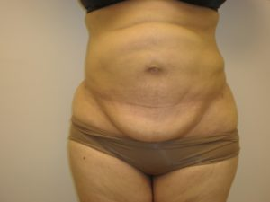 After lipo