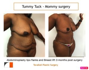 Mommy surgery