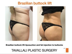 Before and after of Brazilian Buttock lift
